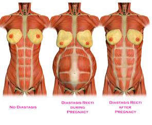 diastases 1
