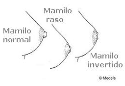 mamilos invertidos